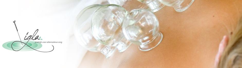 cuppingtherapie-Baarn.jpg
